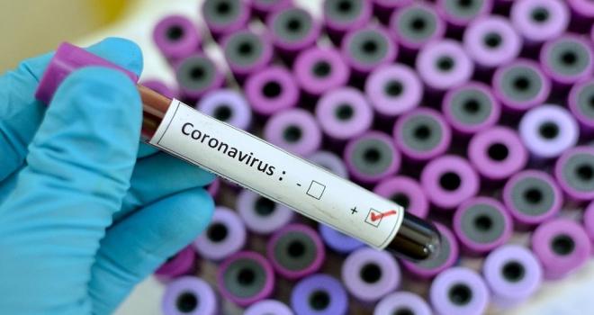 Rize'nin Coronavirüs İle Sınavı